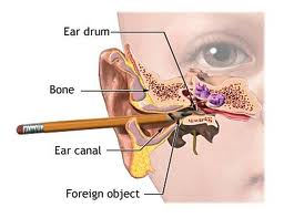 ears general knowledge simply knowledge