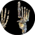 Homo naledi might have walked