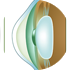 Ashthmatic eye
